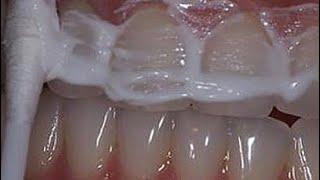 отбелить желтые зубы за 2 минуты!