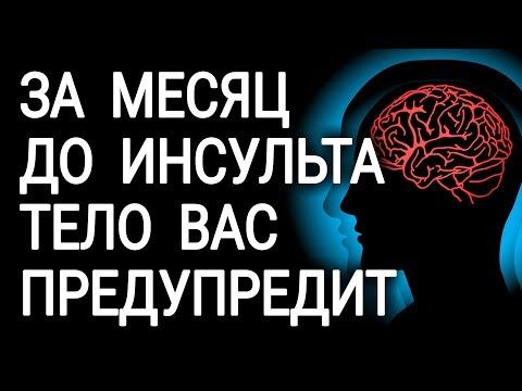 Перед инсультом ваше тело предупредит вас | предвестники | предупредит | инсультом | головного | симптомы | признаки | инсульта | причины | инсульт | перед
