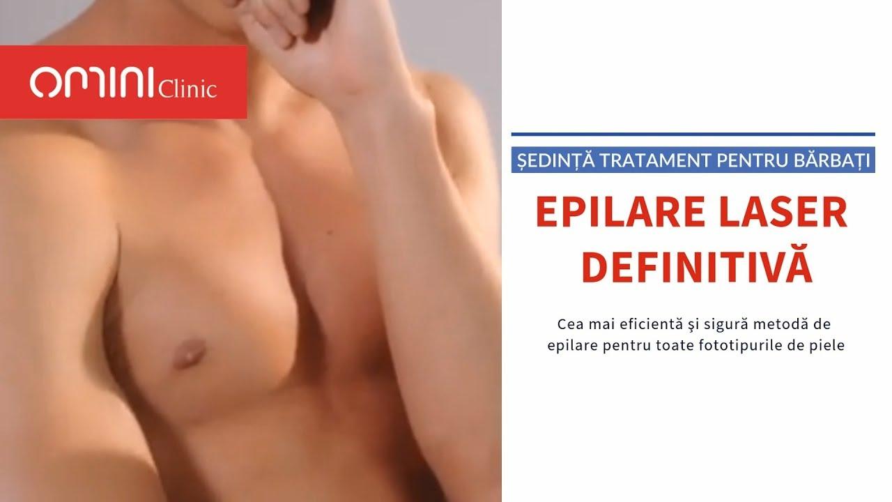 Epilare masculina