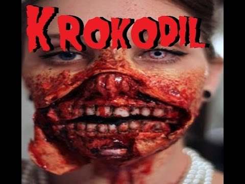 The Effects of Krokodil The Flesh Eating Drug - Real Life Zombies