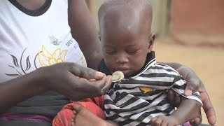 Morning rituals: A routine to fight under-nutrition in Burkina Faso