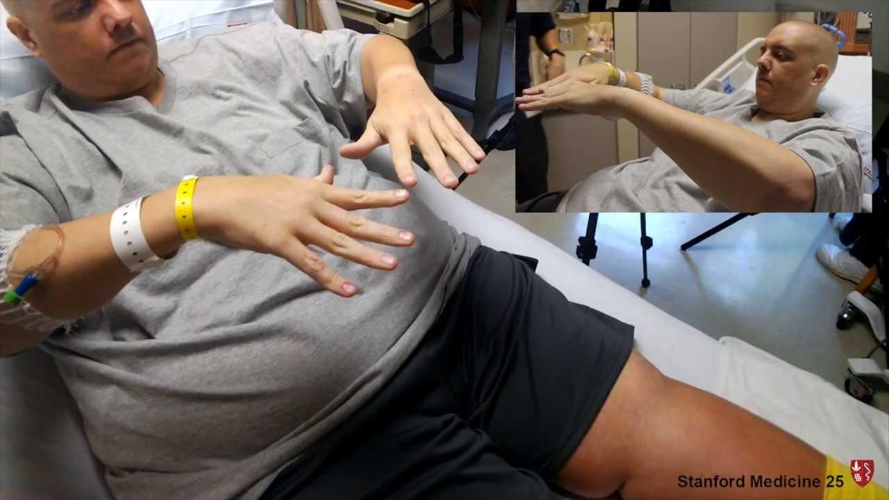 Involuntary Movements and Tremor Diagnosis | Stanford Medicine 25