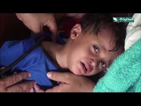 #حمى_الضنك ..  تفتك بأبناء مديرية الجراحي في #الحديدة (8-11-2019)