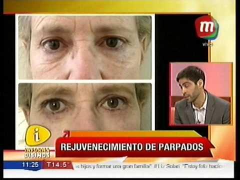 Informad simos 20130507 nota dr adrian mobilia youtube for Mobilia y maldonado
