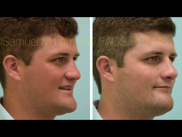 Dallas Rhinoplasty Before and After One Week Out