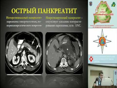 """Ращинский С.М. """"Хирургическое лечение осложнений острого панкреатита"""""""