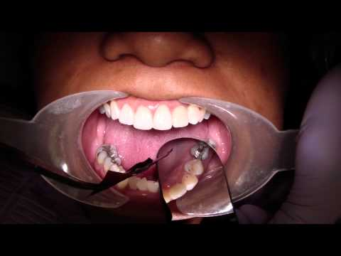 Check Occlusal Contacts On A New Crown