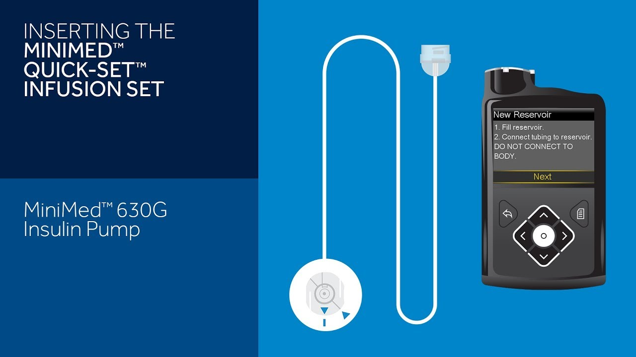 Inserting the Quick-set Infusion Set with the MiniMed 630G Insulin Pump