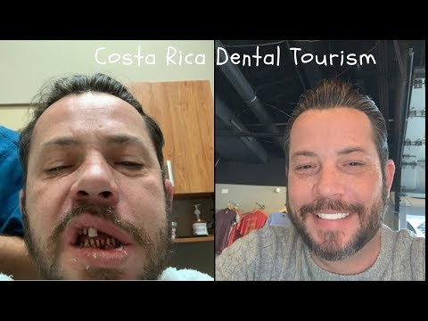 Dental Tourism In Costa Rica, Implants and Veneers, 1 Year Later, Good Or Bad?