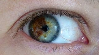 Doctor Turns Brown Eyes Blue Permanently with Laser