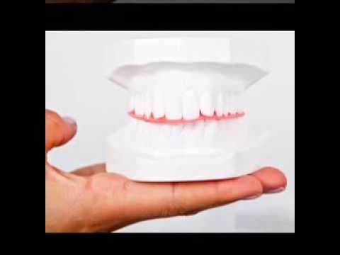Best Dentist Dental Implants Cost Columbus Ohio