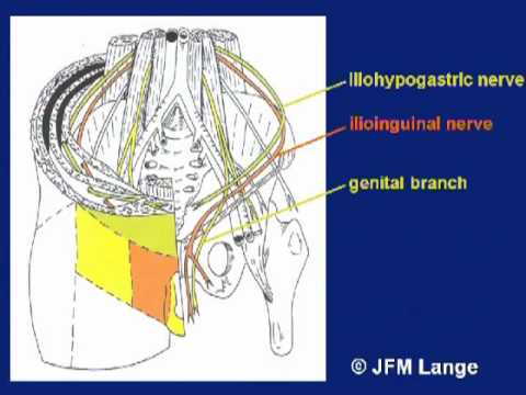 Anterior groin anatomy results of cadaver dissections - A