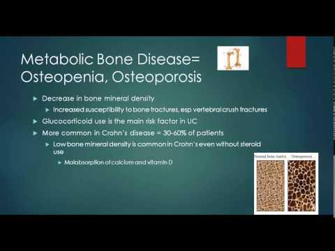 Managing Extra-Intestinal Manifestations of Crohn's Disease & Ulcerative Colitis