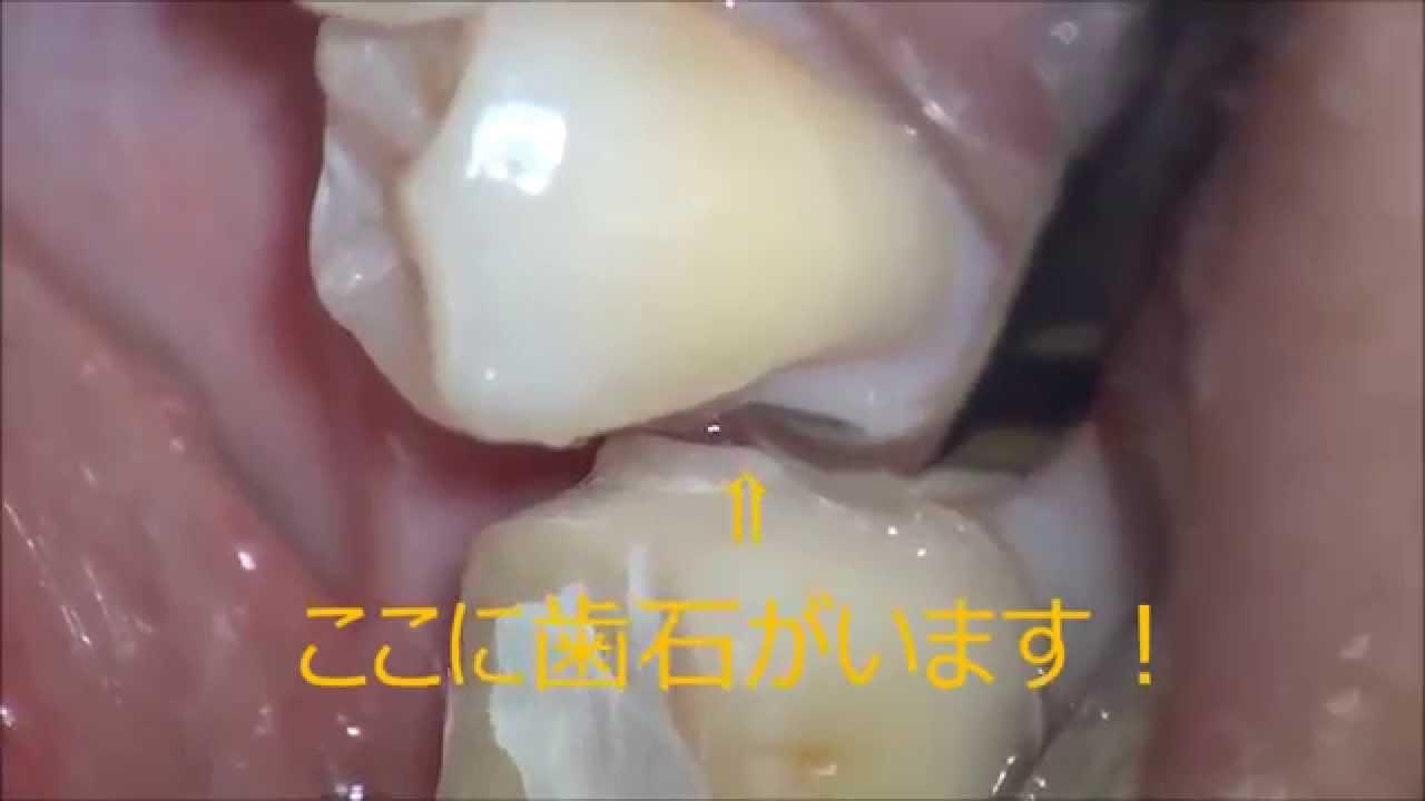 痛みの少ない歯石の取り方 - YouTube