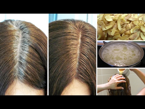 Get Rid Of Gray Hair Naturally With Potato Skins