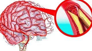 Как очистить сосуды головного мозга. Мощный рецепт народной медицины.