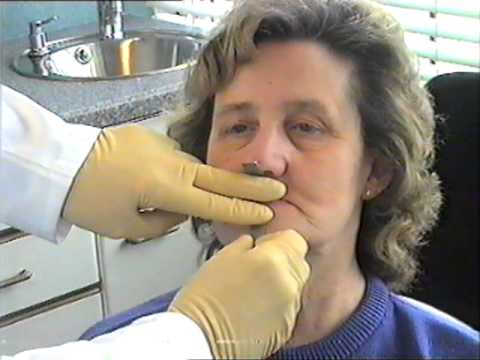 Denture Procedure