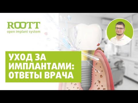 Как ухаживать за имплантами в домашних условиях