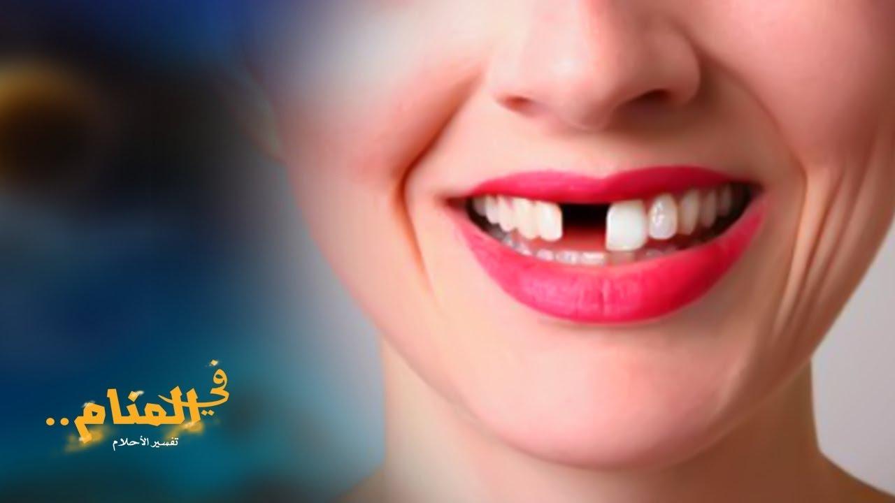 وقوع الأسنان في المنام Youtube