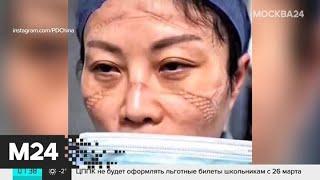 Врачи показали, как выглядят их лица после работы в условиях пандемии коронавируса - Москва 24