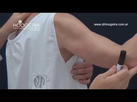 Tratamiento de flaccidez de los brazos (15002)