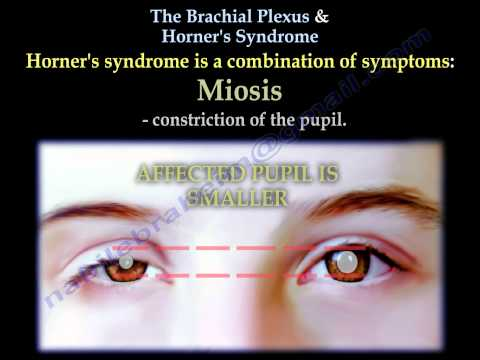 The Brachial Plexus & Horner's Syndrome - Everything You Need To Know - Dr. Nabil Ebraheim