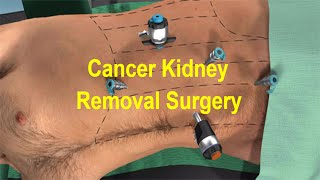Laparoscopic Nephrectomy Hd Dr Singh