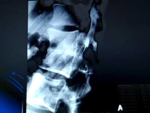 Blocked vertebra.mp4