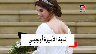 لماذا تعمدت الأميرة أوجيني اظهار ندبتها في حفل زفافها؟