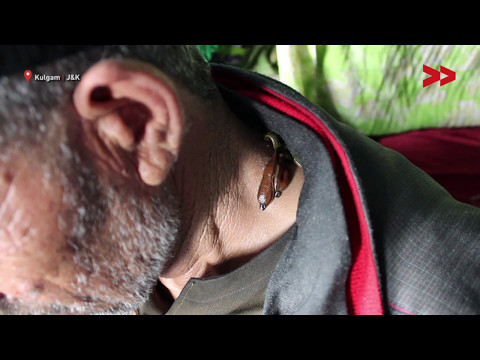 Leech Therapy Helps Many In Kashmir To Get Rid Of Different Ailments | Sajad Shah Reports