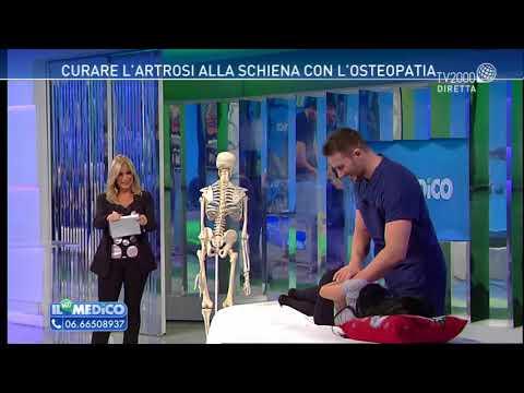 Artrosi: i Sintomi