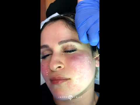 TCA Cross For Acne Scar Treatment   Combination Treatment   TCA Cross For Ice Pick Acne Scars