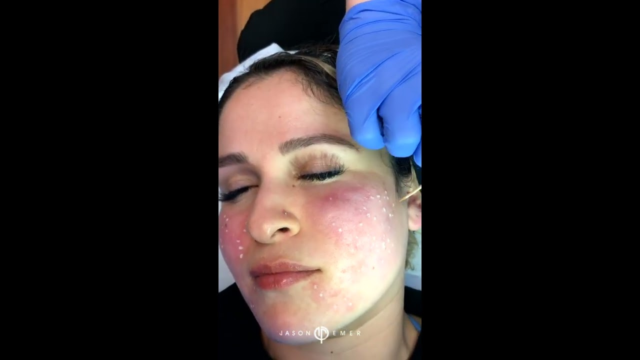 Dr  Jason Emer elevates ice pick scars and deep pores long