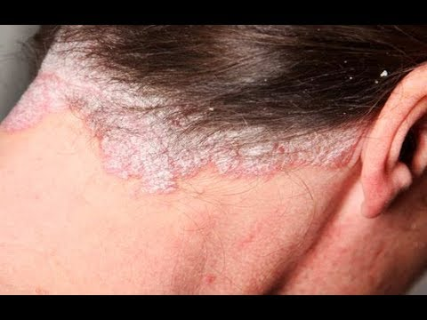 Trị Bệnh Vẩy Nến Da đầu Cực Hiệu Quả