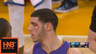 Lonzo Ball Smashed His Face / Lakers vs Warriors