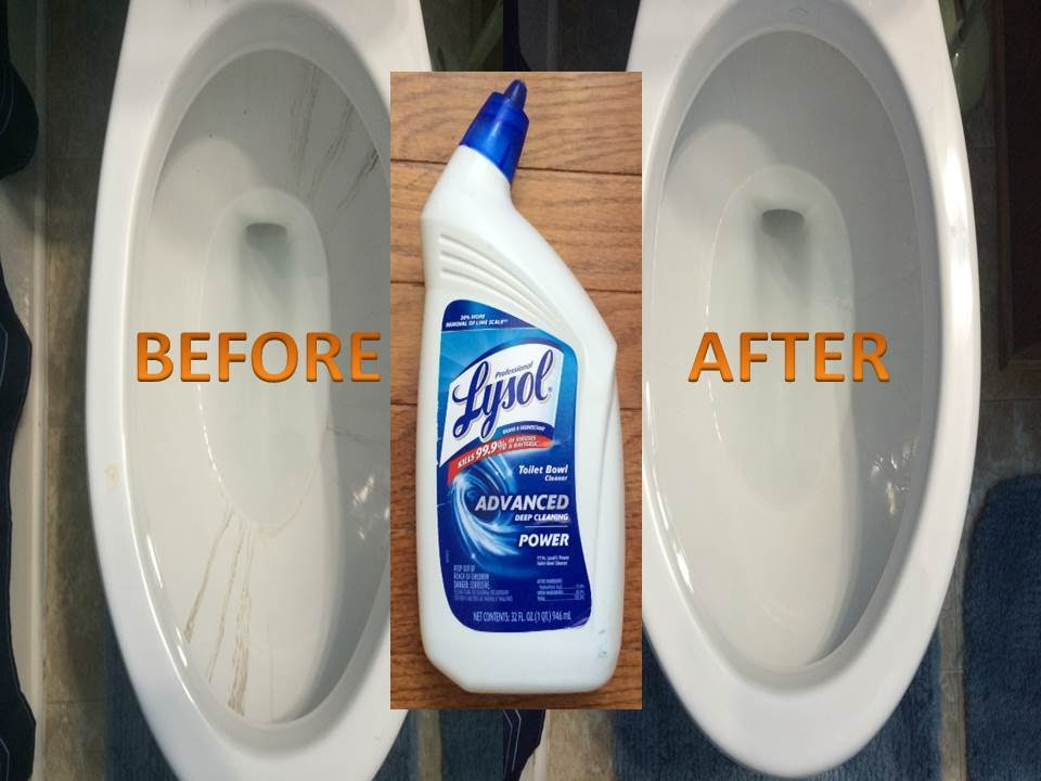 Best Toilet Bowl Cleaner To Clean A Dirty Toilet Youtube
