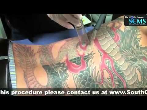 Laser tattoo removal melbourne youtube for What is the cost of tattoo removal