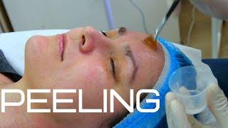 как сделать химический пилинг лица