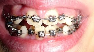 Aparelho Ortodôntico - Antes e Depois de 2 anos - Aparelho Dentário com Borrachinhas Coloridas