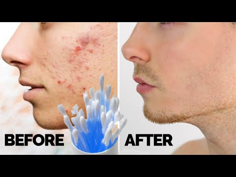 How to Get Rid of Acne Overnight - Acne Remedies That Actually Work! Get Rid Of Acne Fast And Easy