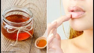 6 remèdes naturels contre les gerçures des lèvres
