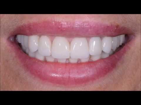 Виниры на зубы фото до и после, цены, отзывы, виды