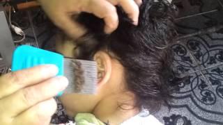 Repeat youtube video Niño infestado de piojos | ¡¡¡INCREIBLE!!!