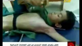 Repeat youtube video The boy which was tortured by rebels in Misurata