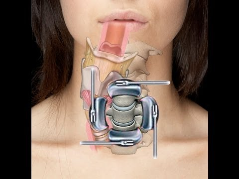 Cervical Spine Surgery Acdf Swallow Amp Voice Problems