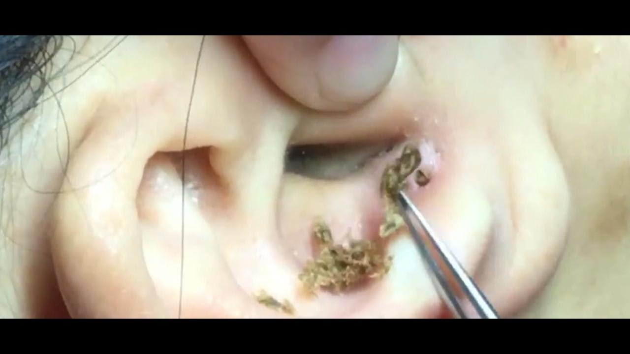 Could it Happen to Me?: Ear Blackheads