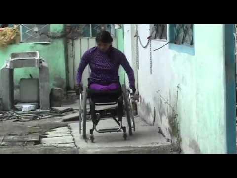 Amputee rak chinese girl - 3 9