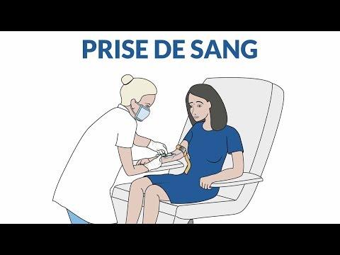 Comment se passe une coronarographie ?из YouTube · Длительность: 10 мин2 с