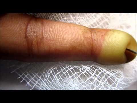 Index Finger Blister Popping