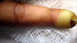 Index Finger Blister Popping